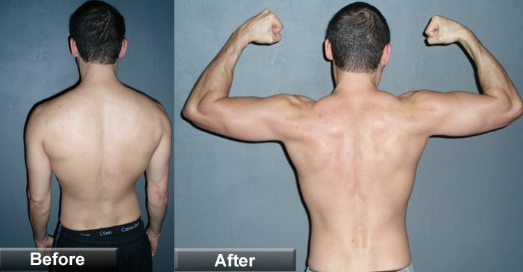 ectomorph-build-back-muscle
